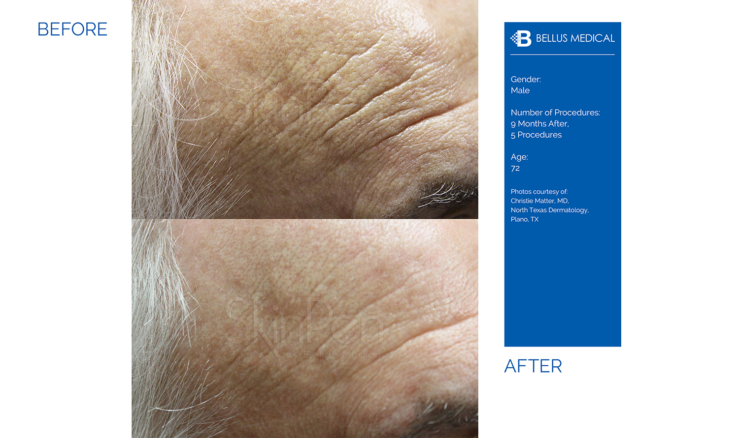 Complexions Skincare Medspa - Before & After 3