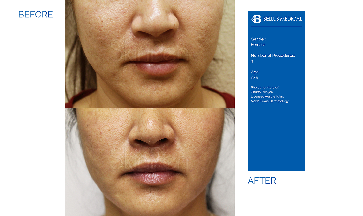 Complexions Skincare Medspa - Before & After 4