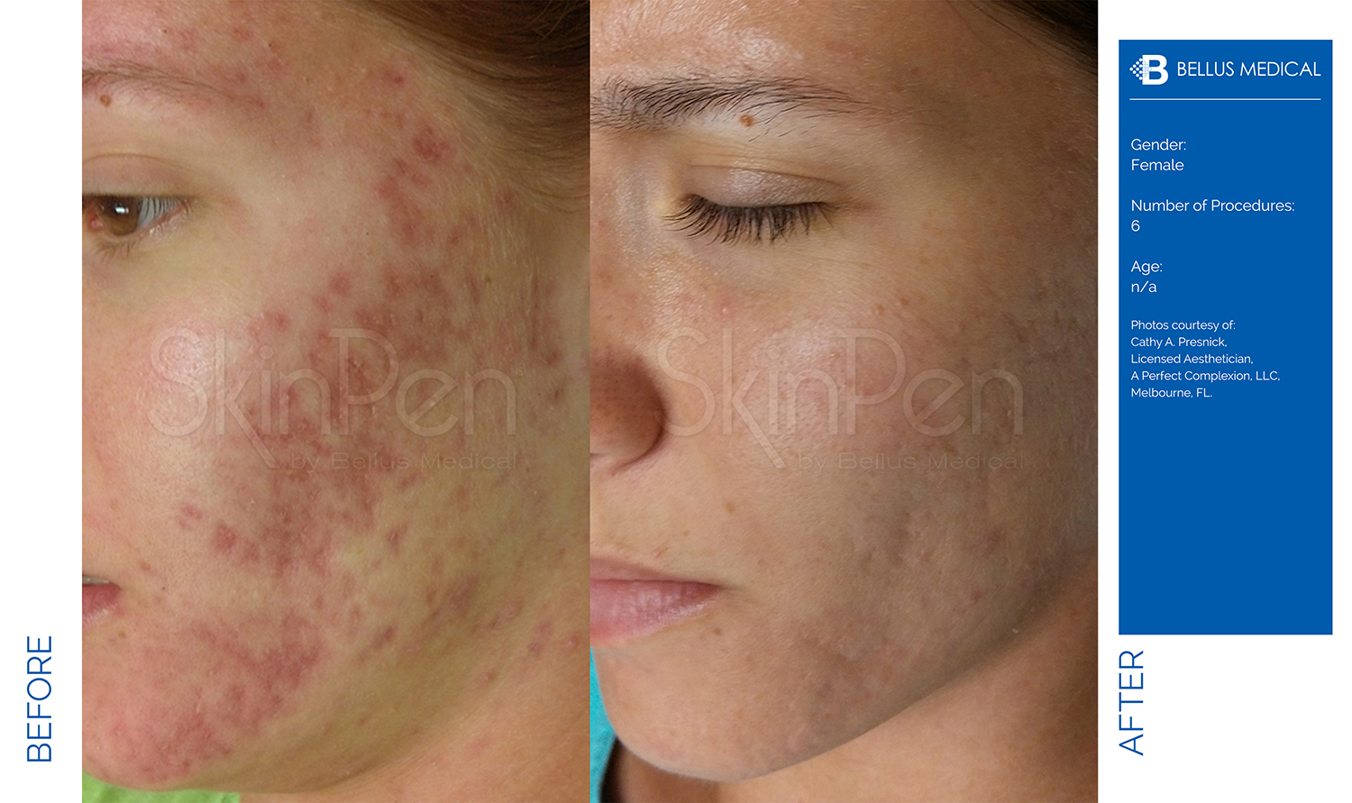 Complexions Skincare Medspa - Before & After 6