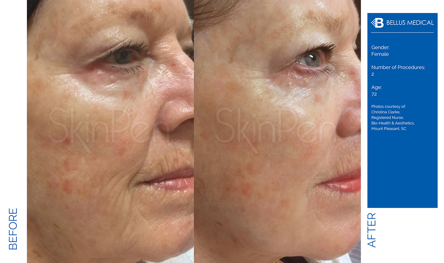 Complexions Skincare Medspa - Before & After 10