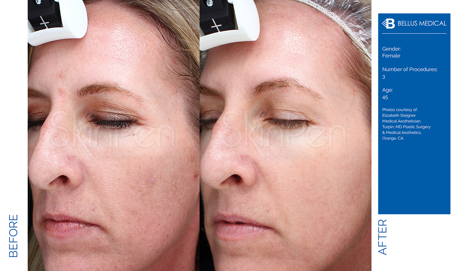 Complexions Skincare Medspa - Before & After 15