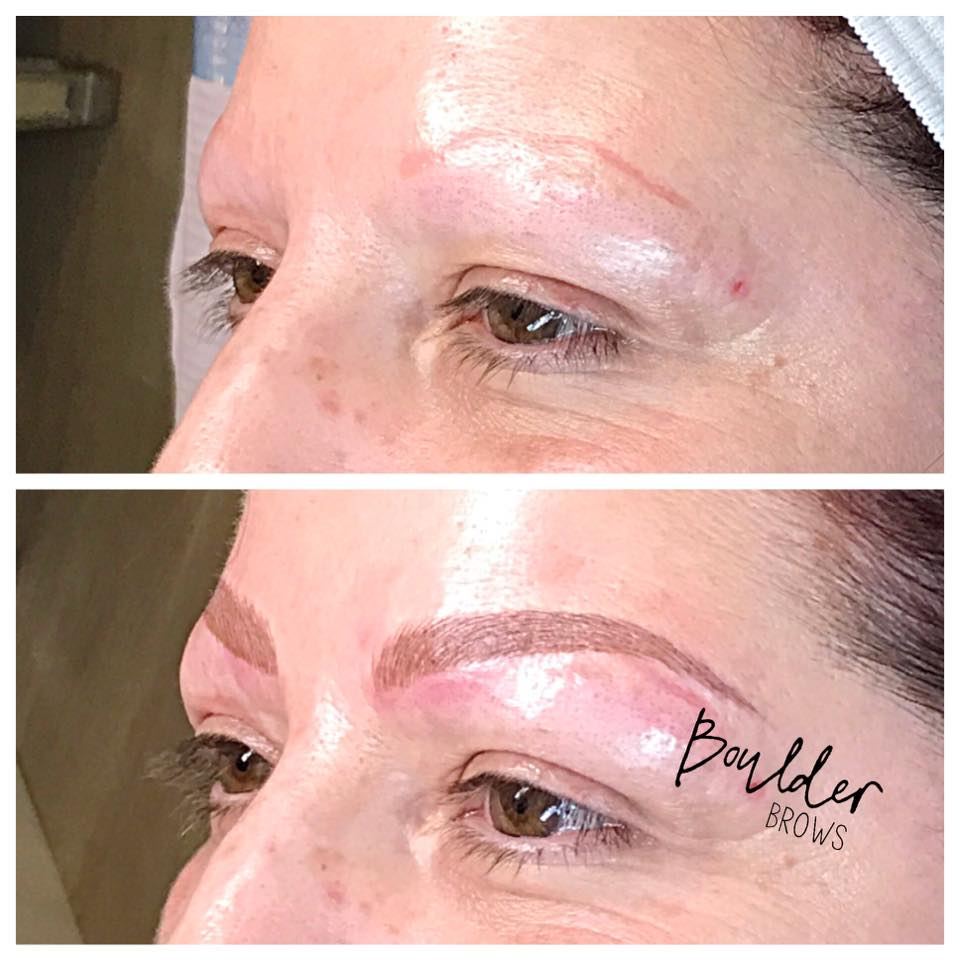Top: Old Faded Red Tattoo| Bottom: After Microblading