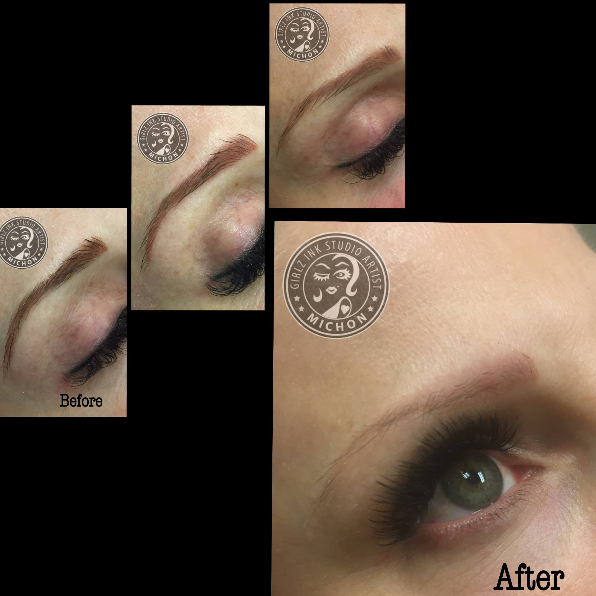 Process of 3 Removal Sessions