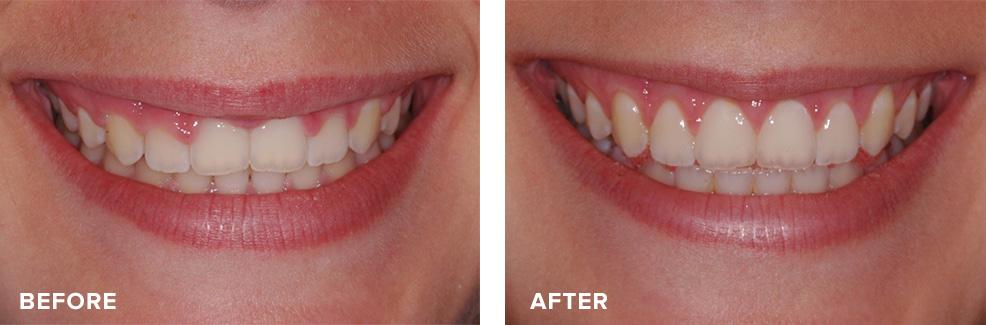 Aesthetic crown lengthening for gummy smile