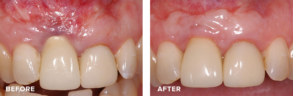 Combined gum graft and crown lengthening to address recession if previously placed implant