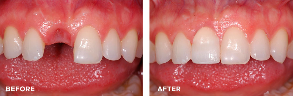 A removable denture replaced by an implant and crown