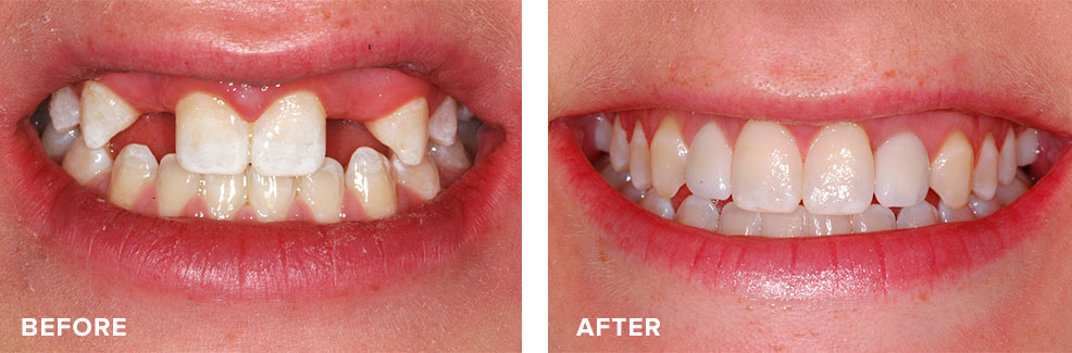 Implants used to improve a young person's smile