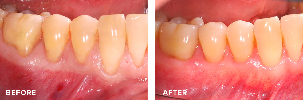 Four teeth with receded gums treated simultaneously