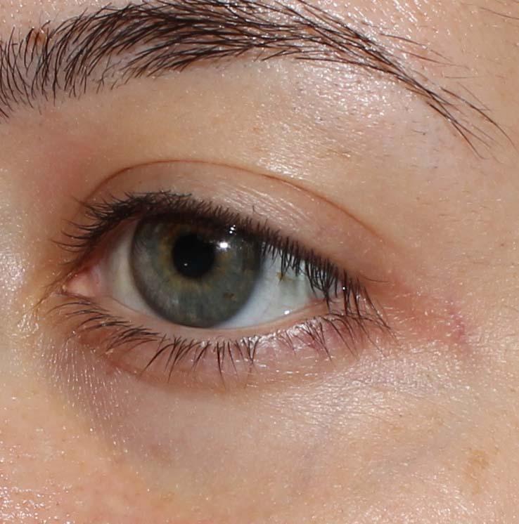 Tria SmoothBeauty Eye Wrinkle  Laser
