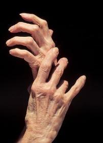 Arthritis Hands.jpg