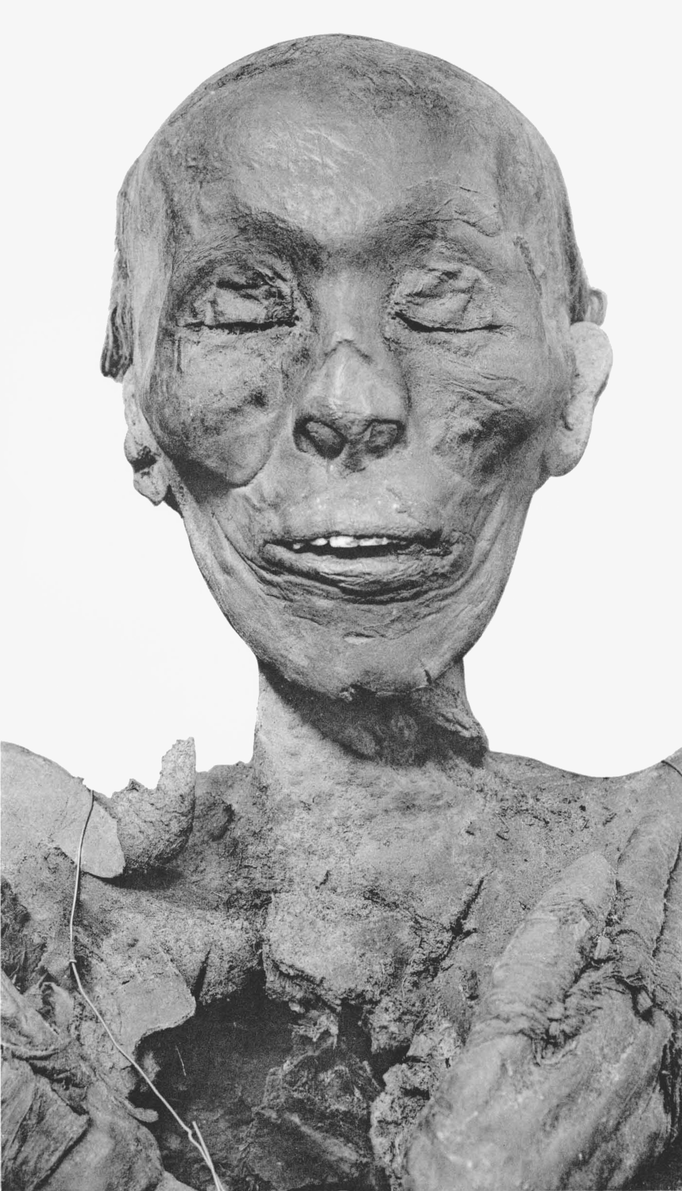 Thutmose II, Hatshepsut's half-brother and husband, suffered from lesions, pustules and an enlarged heart