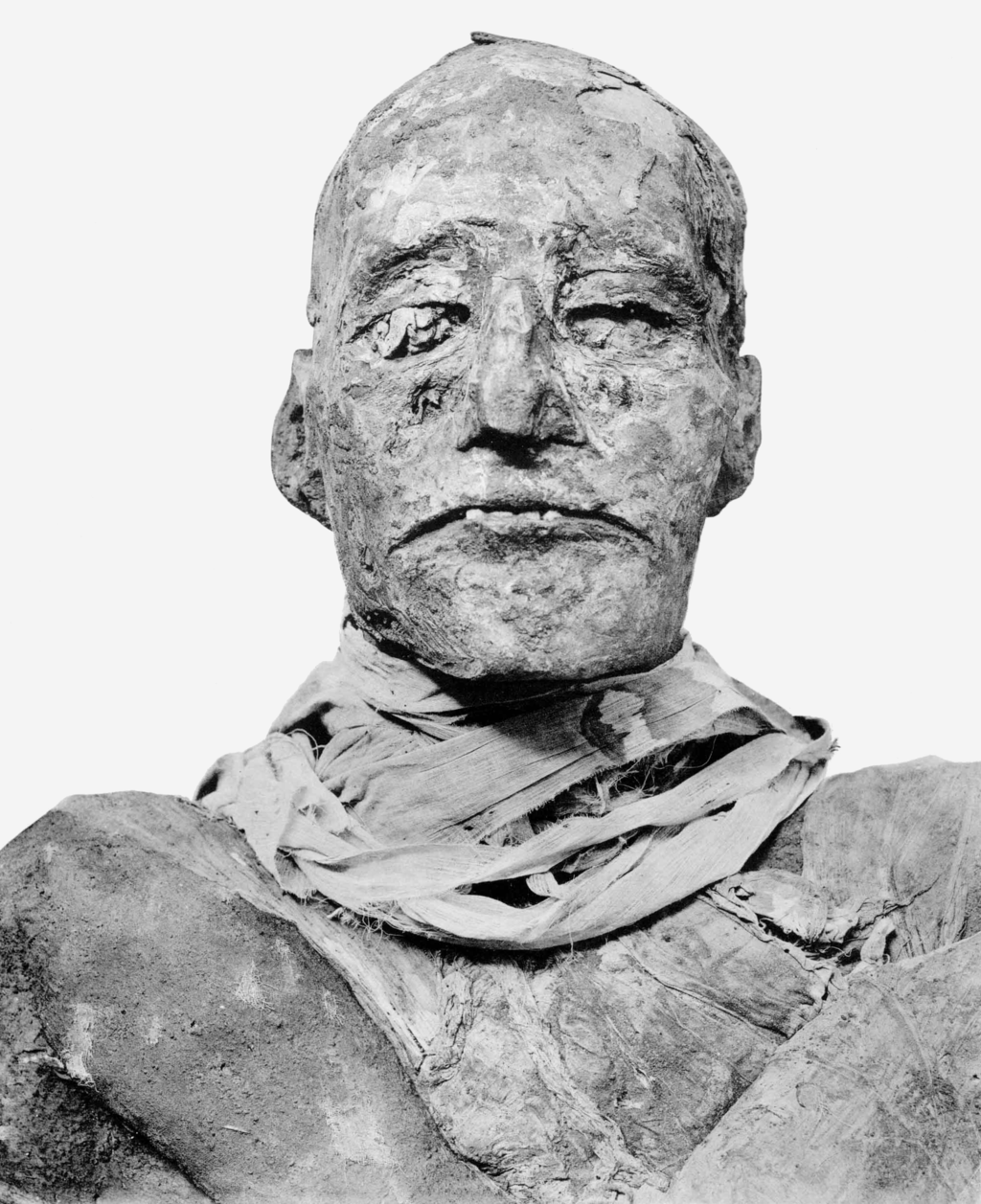 The mummy of Ramesses III. The wrappings hid the fact that the pharaoh's throat was slit when he was assassinated during a massive coup