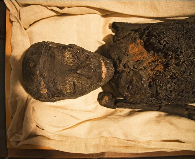 The resin used to preserve King Tut's mummy actually ended up damaging it when Carter and his team removed the funerary mask