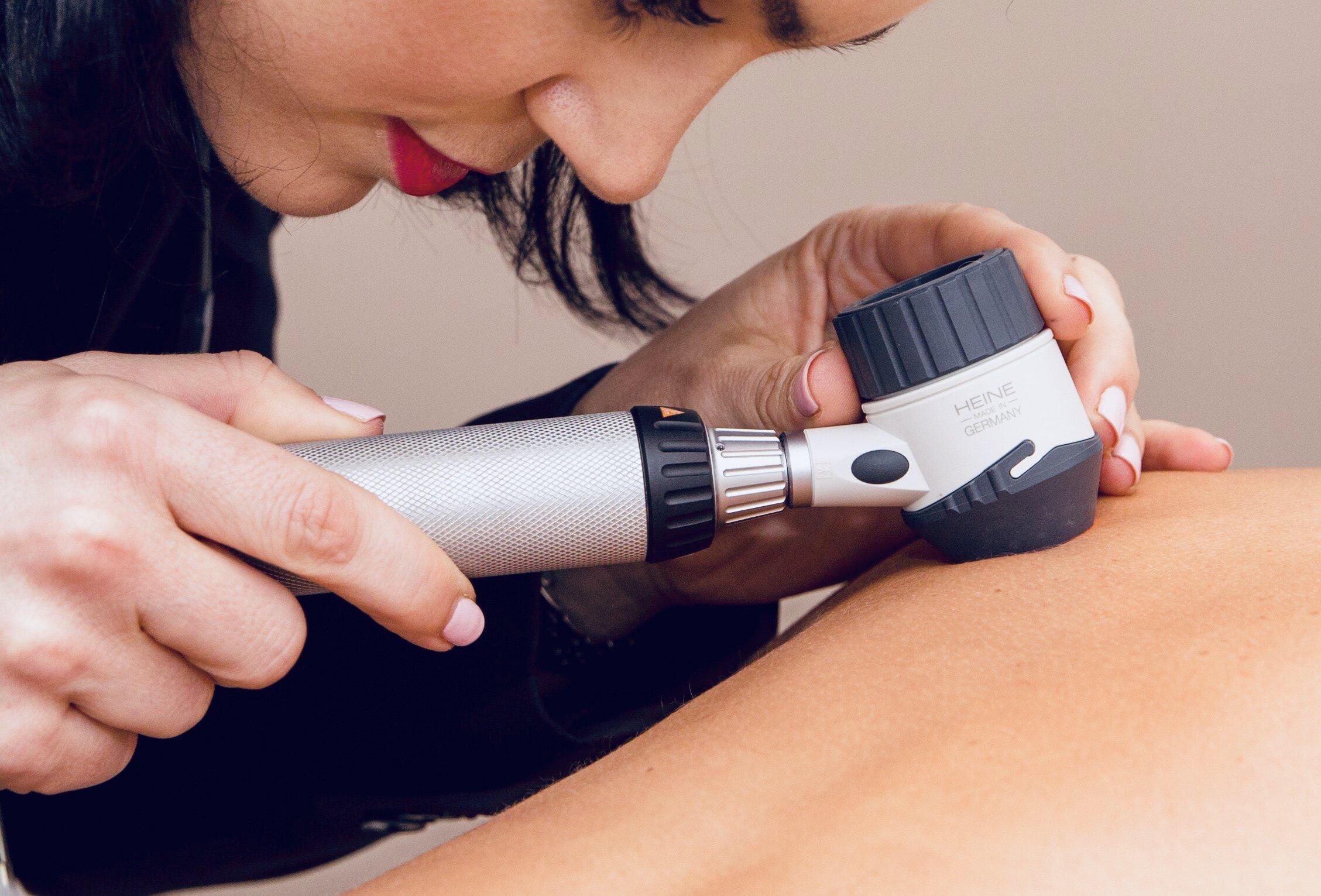 Dr Alice Rudd - Skin Check