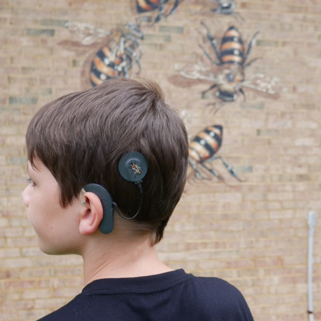 "Meet Xander, an 11 year-old boy with a Cochlear Implant. He got the implant put in surgically in May of 2017 and they hooked up the receiver in June. The Good of the Hive was there for it, and later that day I painted a bee on the magnetic disc that connects the implant to the receiver. Xan is now the youngest inspiration of the initiative yet! Personally, I think he is incredible for wanting to do this. I am pretty sure that when I was 11, I would have been trying like hell to make my hearing aid device as unnoticed as possible. But Xan chose to use this challenge to raise awareness (and turn up some volume!) on the issues surrounding honeybees. He is a rockstar in my book no matter how you look at it!  This all started while I was on the farm in Nebraska, and attempting to scroll through facebook with little or no internet or cell service. I happened to see a post by his mom, Meghan, offering three choices in color for Xan's new receiver. He was trying to decide between black, dark grey and white. I (somewhat seriously) commented, ""The magnetic part would make a nice little canvas for a bee."" I got a pretty quick response that moved us from somewhat serious to full in. And Xan was inspired by the idea to take it a step further and start talking to people about the bees when they ask him about the receiver. The receiver is a natural attention grabber. And in a battle to keep raising awareness about the bees, creativity and magnetism are key.  Xan lives a block away from the mural I painted on the fire station in Carrboro, NC so he knew all about the initiative and the bees and saw this as an opportunity to help. I saw his enthusiasm as an example of the mural working to raise awareness beyond the act of making it!  I want the murals to have a life beyond the experience we create while I am there painting. I permanently put bees in place in the hope that they continue to invoke thought and engagement. It was a theory at first, but Xan is an example that it is working. I have also gone back to Estes Hills in Chapel Hill and talked with students about the bees and activist art. I have gone back to Burt's Bees several times to present… and now Xan is advocating in Carrboro.  My painted bees don't pollinate or sting, but, no matter where I paint, there is always a bee and a story surrounding our connection to these remarkable creatures.  Bees communicate through the vibration of the honeycomb in their hives, much like we communicate through talking and listening in our communities.  ""Hearing"" in my layman's understanding is all about vibration… for us and for the bees. Bees don't have ears, but they use a section of their antennas to 'feel' vibrations in the hive, which translate as a version of hearing for them. They also vibrate their wings in specific ways during several of their dances, which are one of the bees' most mind-bending forms of communication. The fact that Xan is going to get more than 80% of his hearing back in his left ear is huge with or without a bee on it. But knowing that Xan was motivated to help raise awareness through this challenge speaks to who he is as a human. One man cannot fix the problems for the bees. But one man (or boy) can inspire... and Xan has inspired me to keep looking for unlikely connections. Because sometimes when two unlikely things collide, they create sparks of awareness through curiosity… and where there are sparks there is the possibility of igniting change."