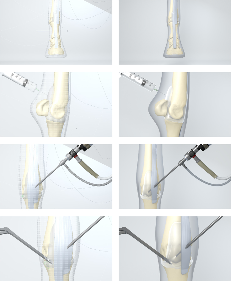 Arthroscopic Surgery Stills