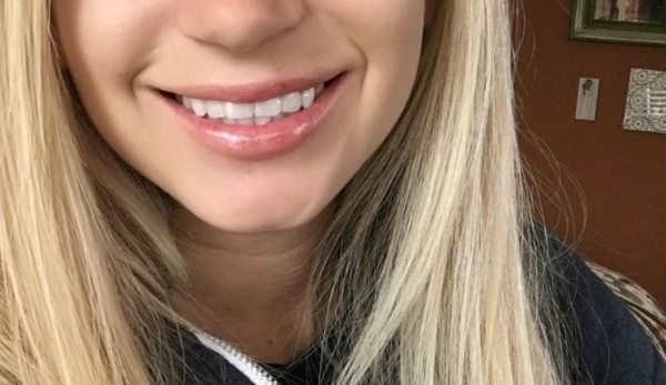 My smile with the filler, so much more fuller!