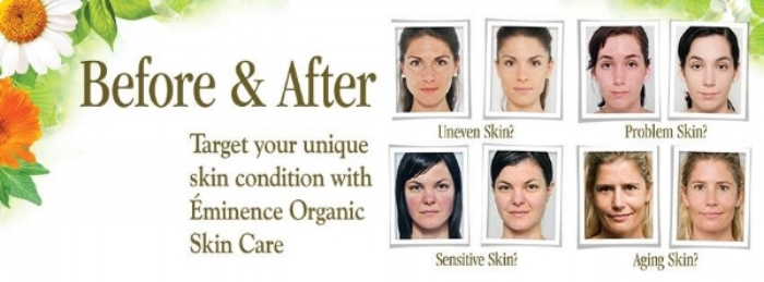 vita skin before after all 4.jpg