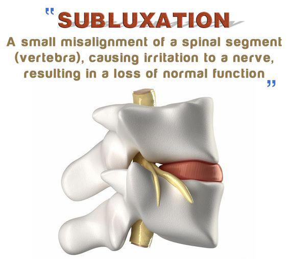 Subluxation.jpg