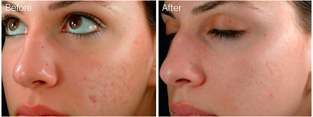Skin Needling  What can it do    Permanent Makeup Designs   Cosmetic Tattoos   Madison  WI.png