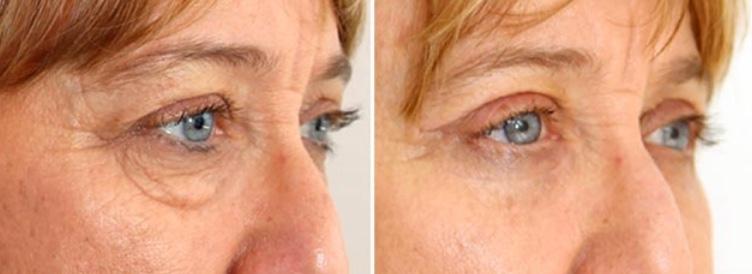 fibroblast plasma skin tightening before after 3.jpg