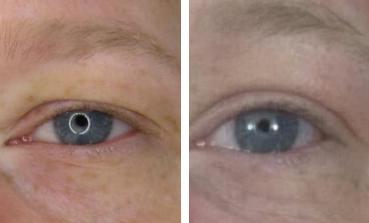fibroblast plasma skin tightening before after 2 copy.jpg