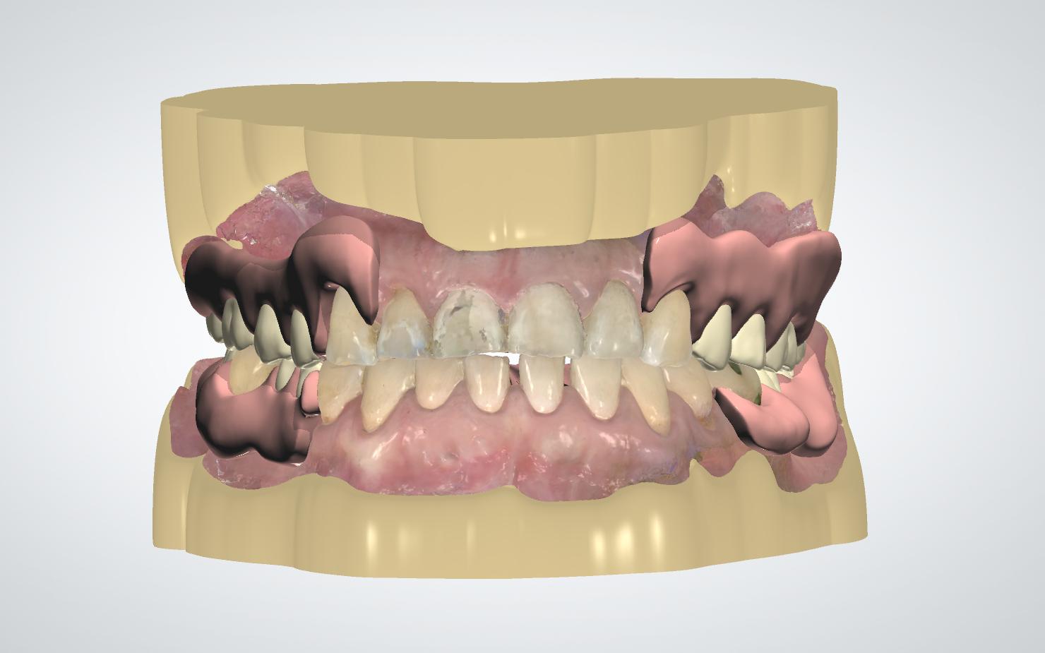 Valplast partial denture, designed with 3Shape Dental System from a TRIOS digital impression.
