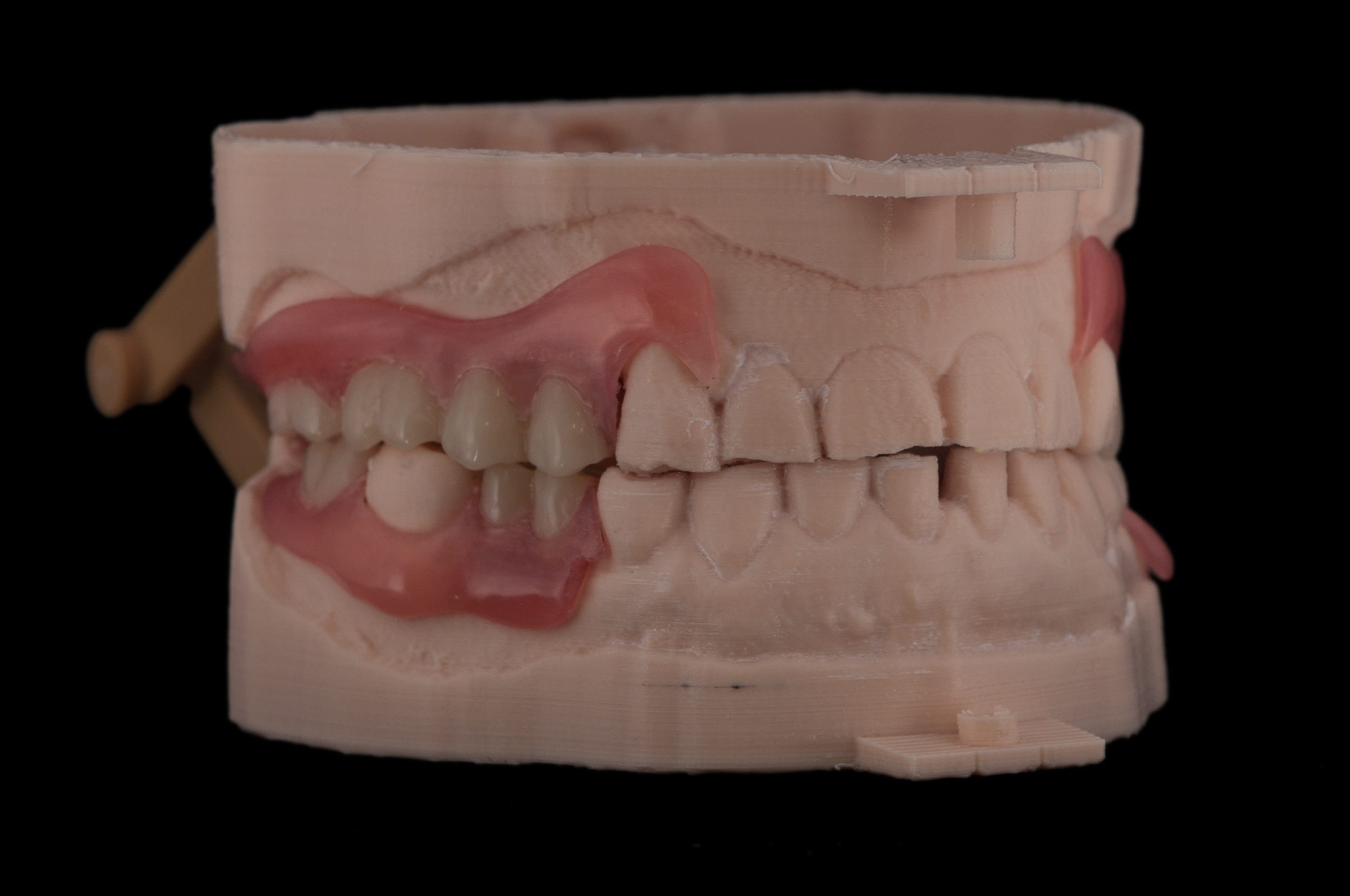 Valplast maxillary/mandibular partial dentures with milled PMMA denture teeth, printed on the r.Pod Desktop 3D Printer.