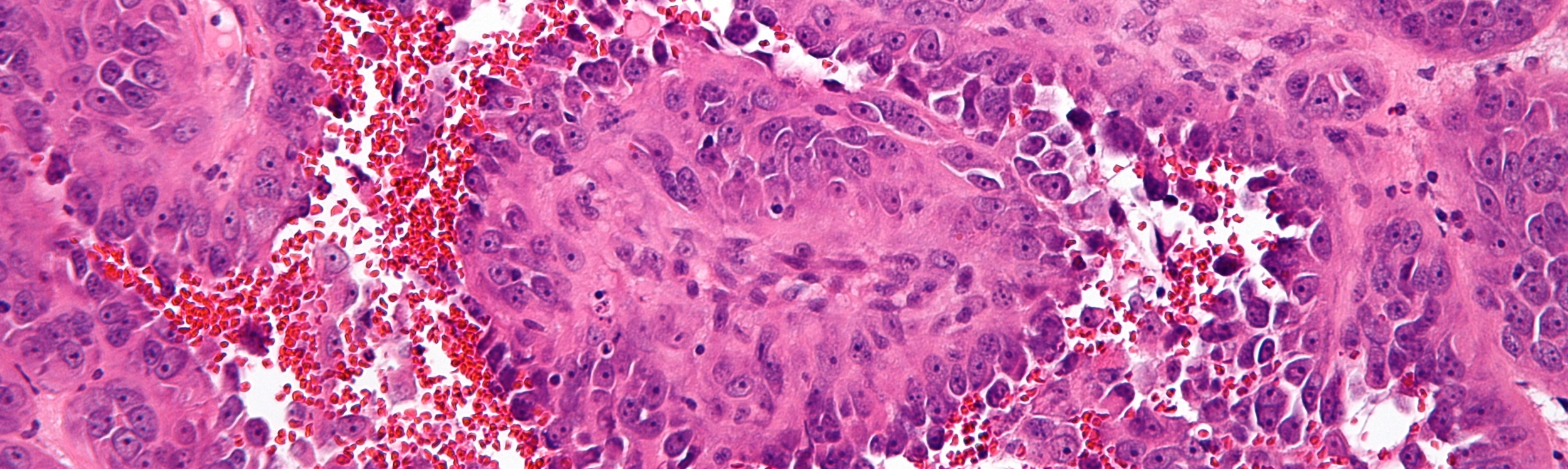 Angiosarcoma of the liver (image via Wikimedia Commons)