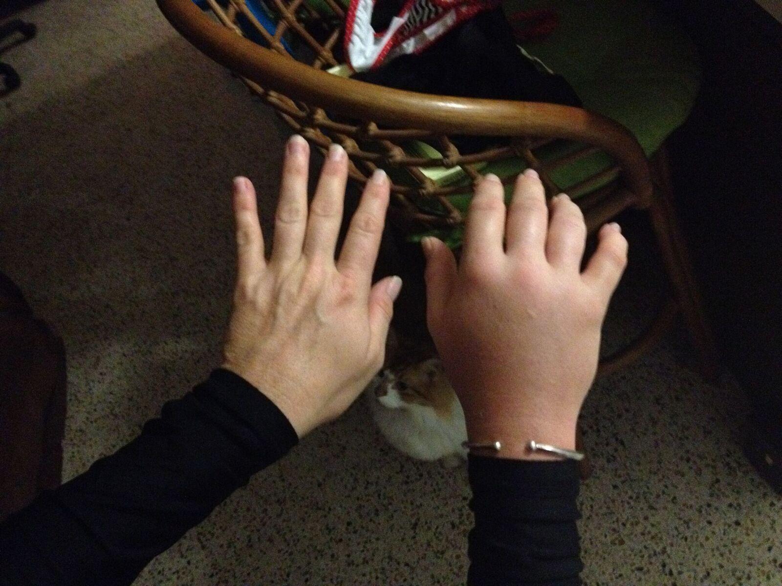 Rachel's hand after being stung.