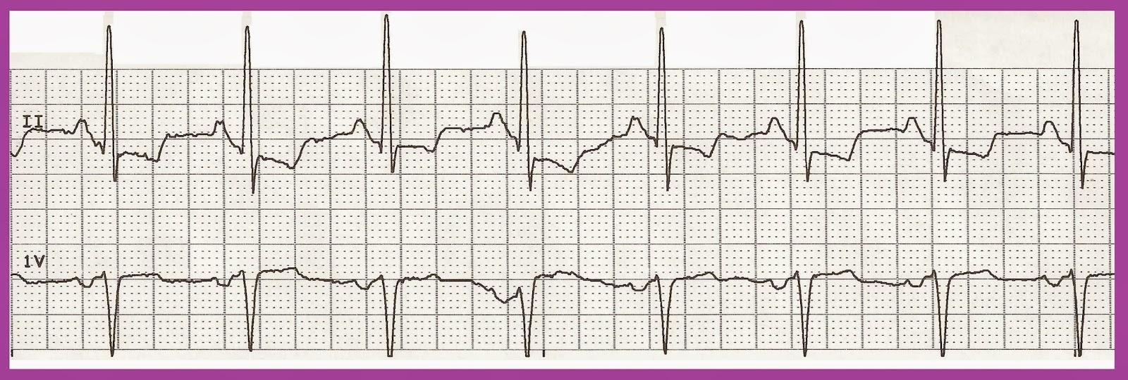 Normal sinus rhythm 02.jpg