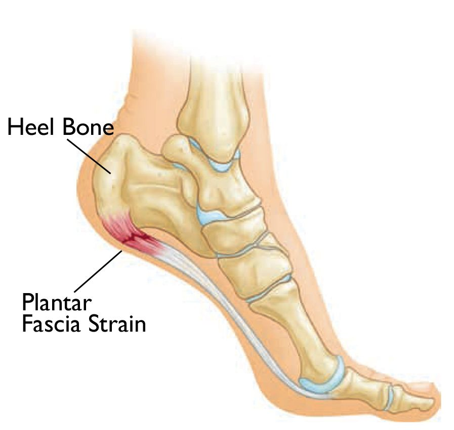 plantar fasciitis injury for dancers