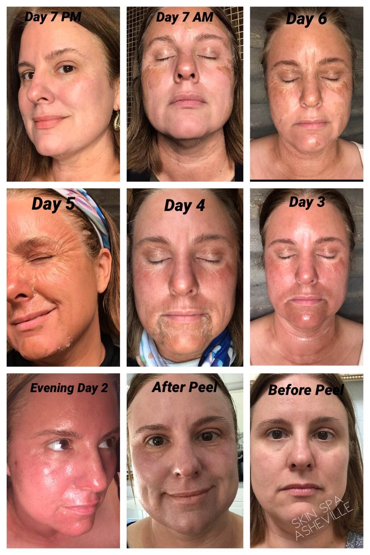 *The photos show The Skin Renewal peeling process with the day of the 1st peel application through to the finally day when all the skin is peeled off.