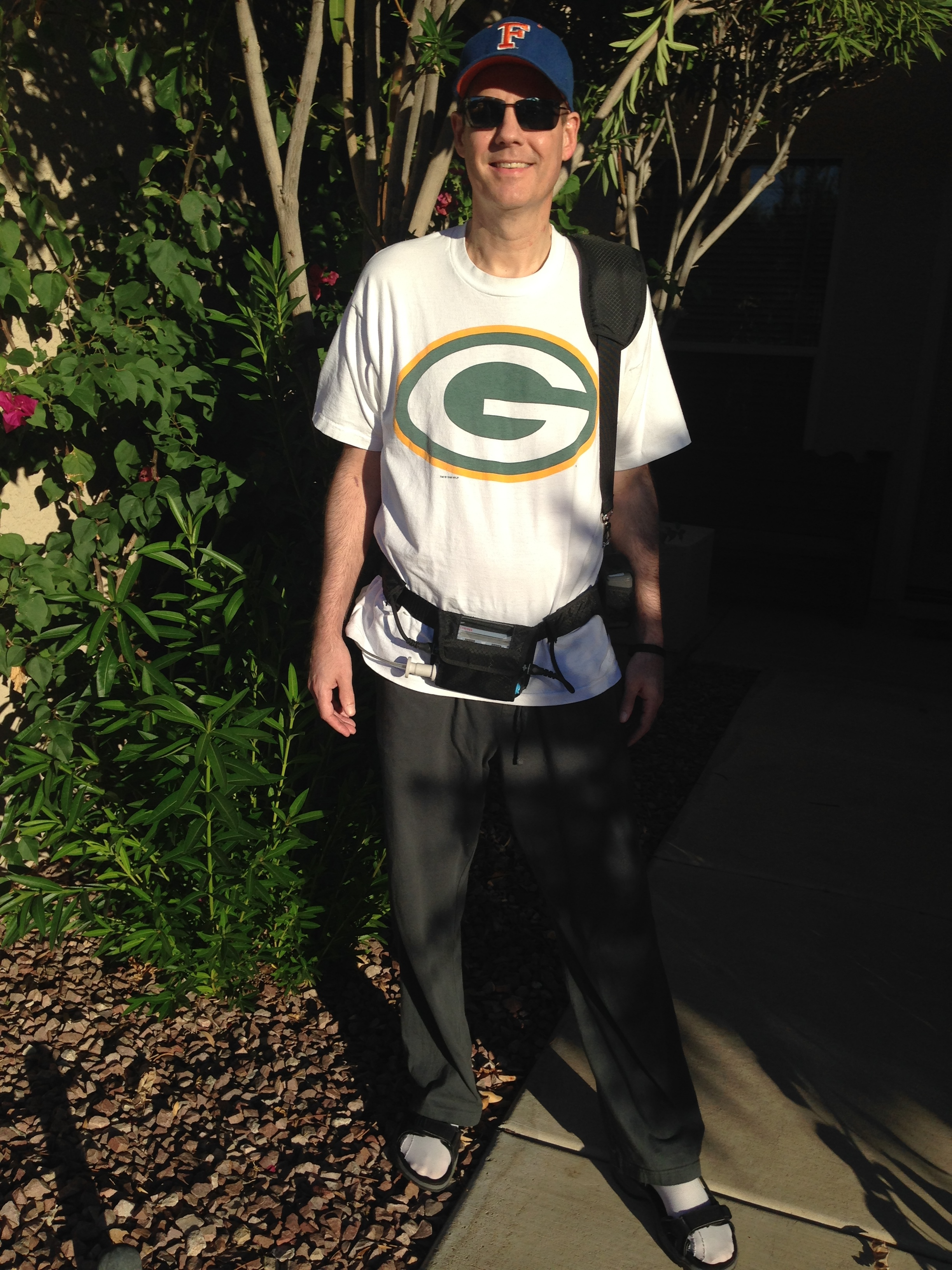 This is a picture of me with my LVAD - using the fanny pack for my controller and batteries, which I could slide to each side of my waist to balance everything out. I found this the most comfortable for when I ventured out and also did my workouts.