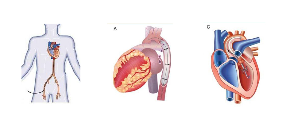 ( A ) intra-aortic balloon pump. Body outline to illustrate how balloon pump is inserted in the body through the groin.( C ) represents the Impella. In my case the Impella was inserted through my chest as they were not able to insert through the groin (possibly after having done several balloon pumps prior).