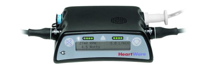 HeartWareController.jpg