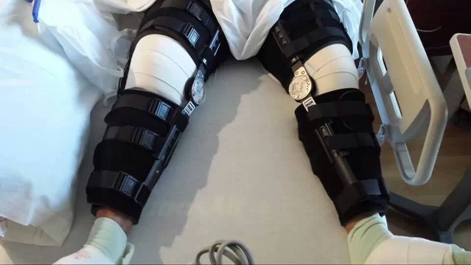 My legs after surgery to reattach my ruptured quadriceps tendons, july 27, 2013.