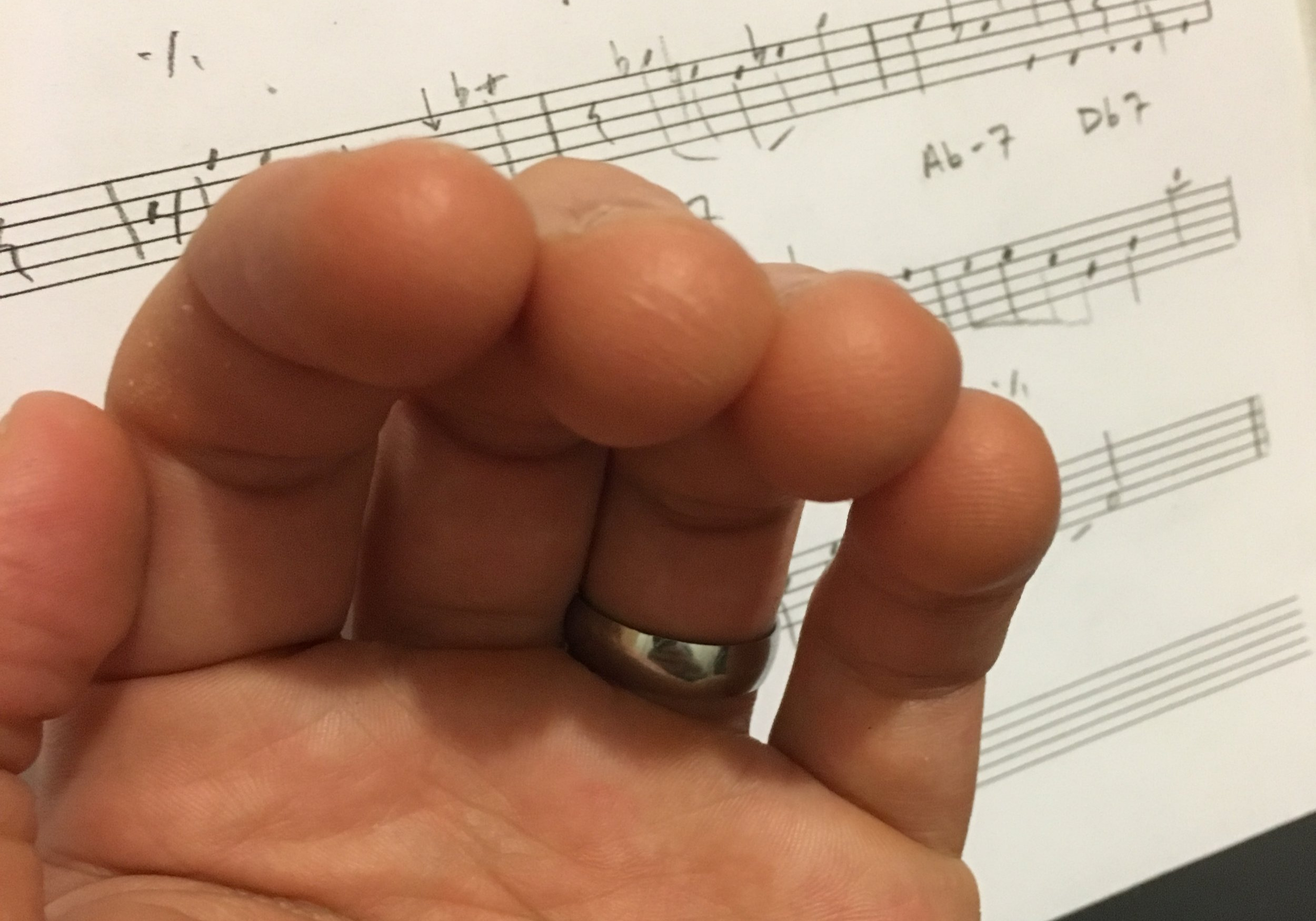 Finger Callouses from playing guitar