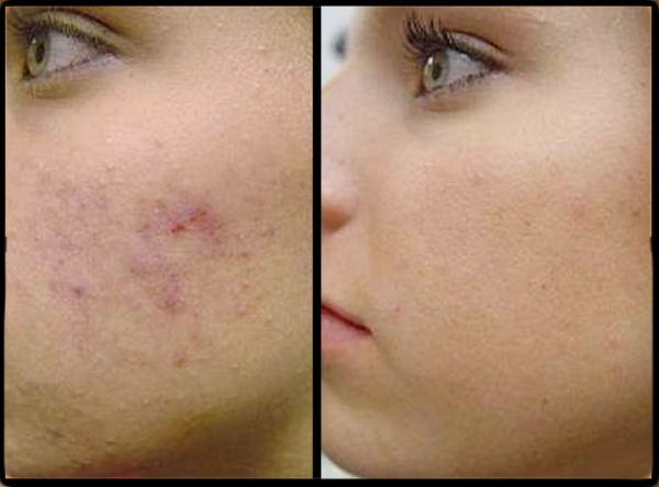 deep-acne-scars-removal-pixel-laser-skin-resurfacing-tomball-vintage park-houston-tx-3.jpg