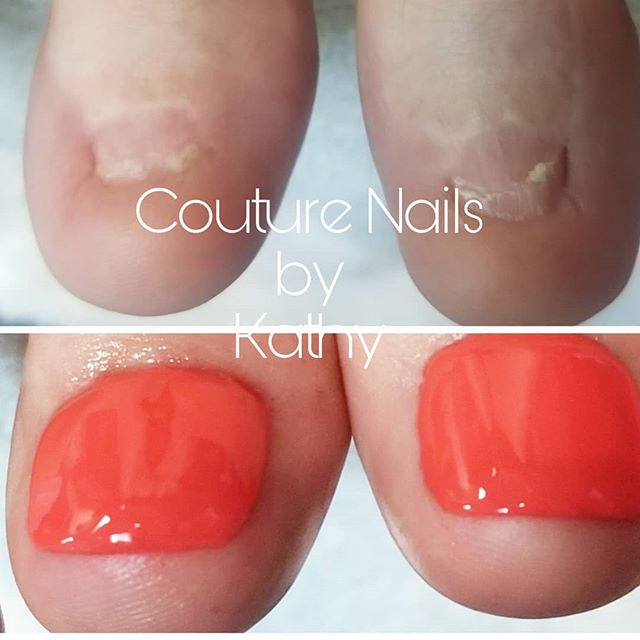 One of my favorite things to do. Toenail reconstruction. This clients toenails have been removed not once not twice but four times. The final time was it. This client can now walk around with pride. No longer does she have to wear Band-Aids over her toes.  #toenailreconstruction #beautifultoes @lcnusa  #springvalleynailtech #springvalleynails #summerlinnailtech #summerlinnails