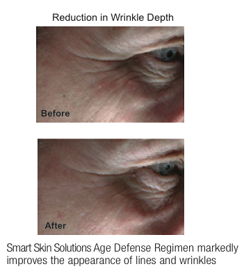 Reduce-Wrinkle-Depth-before-after.png