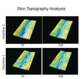 Skin-topography-analysis.png