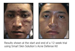 before-and-after-acne-defense-kit.png