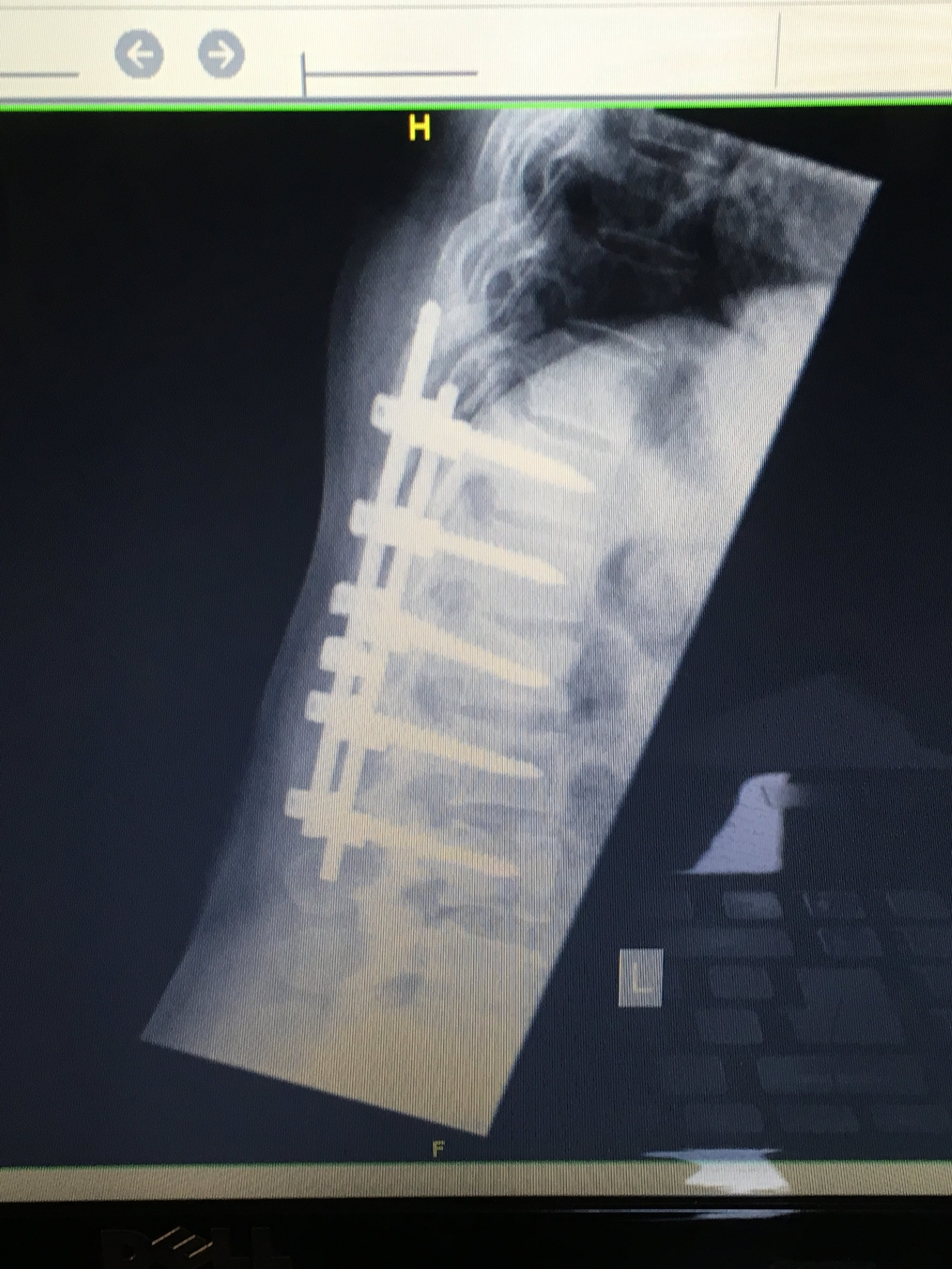 An X-ray of my back