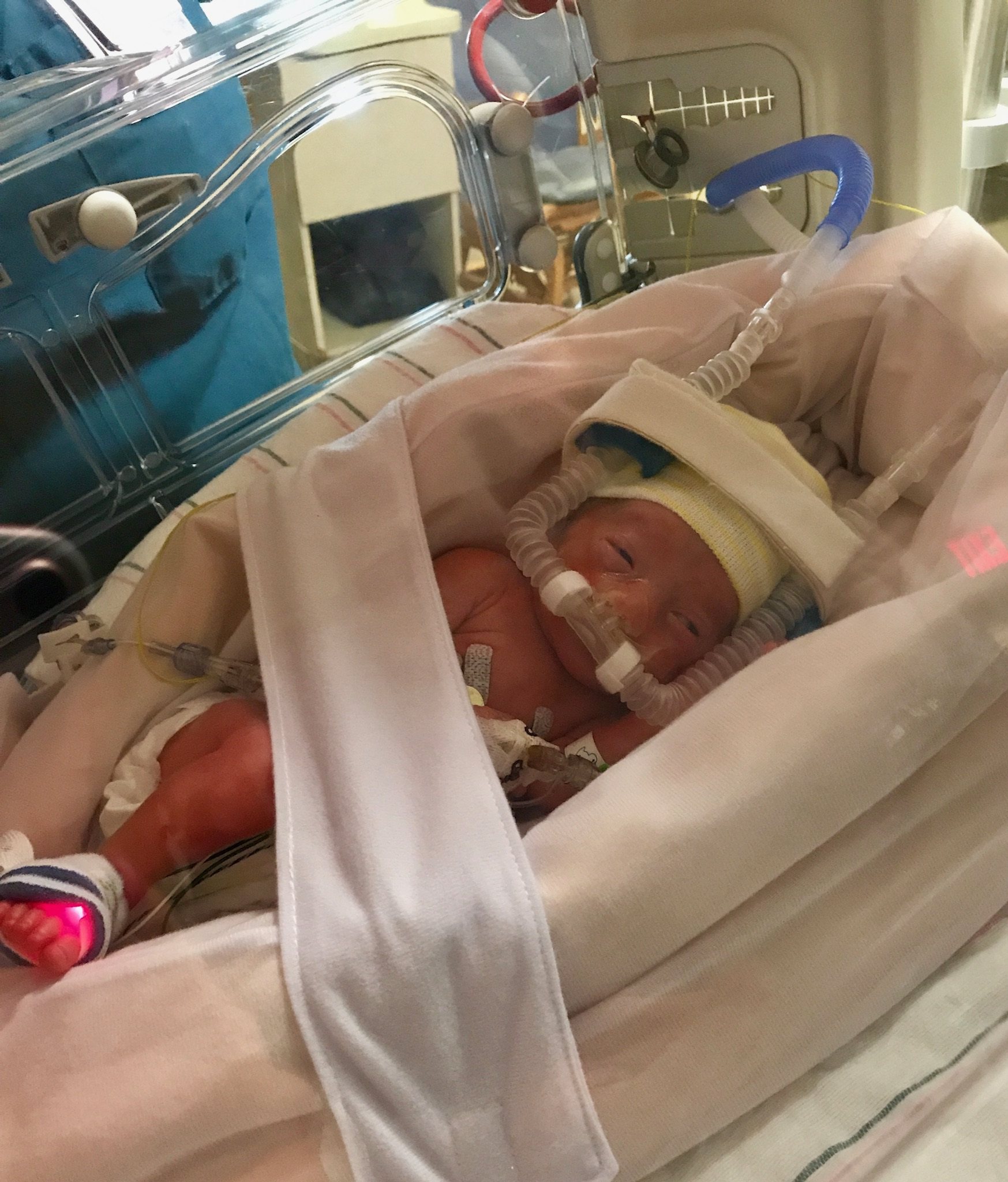 Before Channing could breathe on her own, she used a CPAP machine.