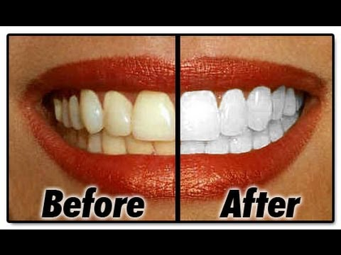 Teeth Whitening at Ellis Dental