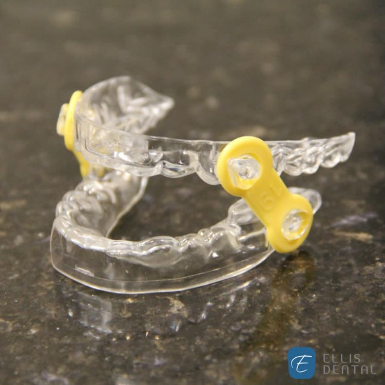 Ellis Dental Sleep Apnea Oral Appliance