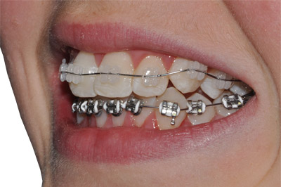 Braces on one of our patients in Lindfield