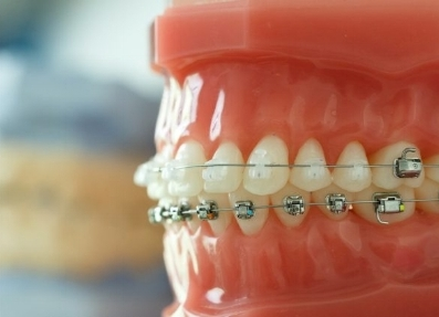 ceramic and metal braces picture.jpg