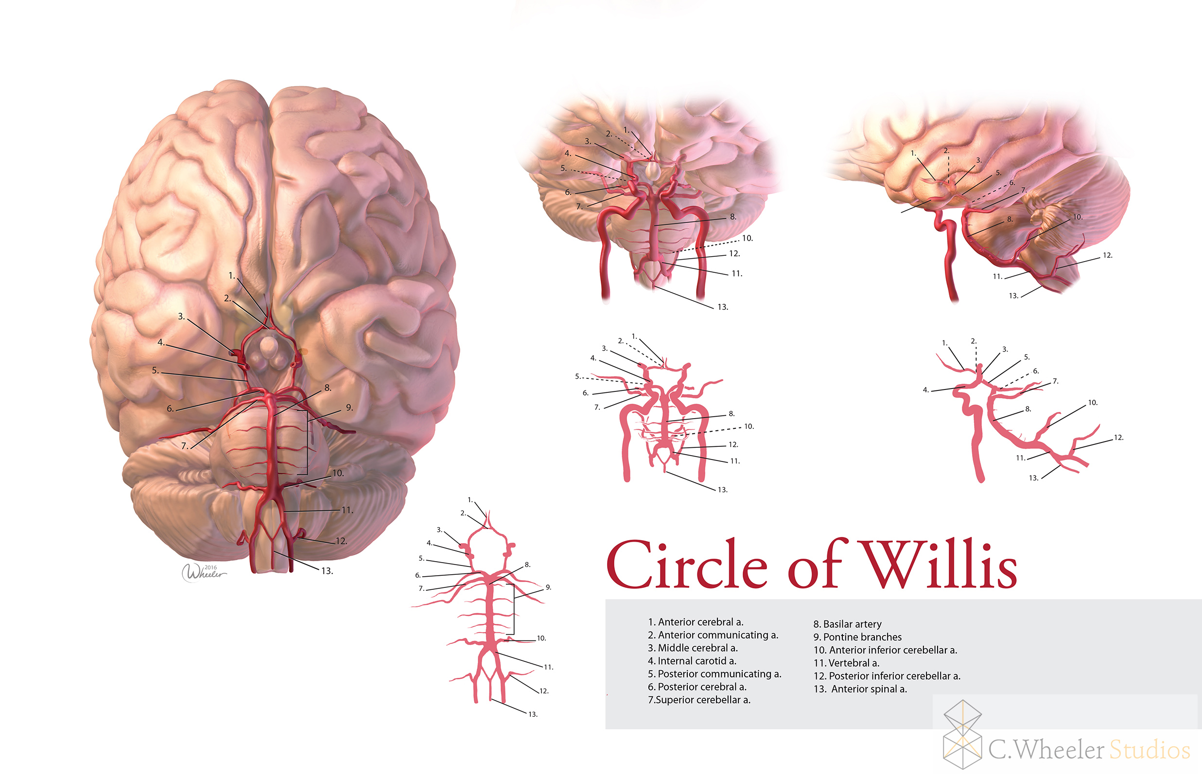 Circle of Willis, 2016